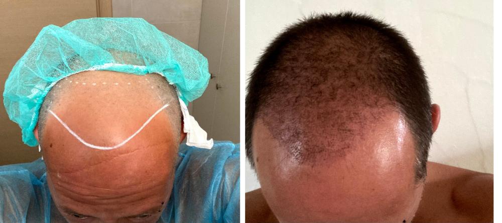Monsieur Cheveux, le spécialiste de la greffe de cheveux en Grèce